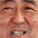 世界一お尻のきれいな日本人、世界一お口の汚い日本人④ 保険治療パートⅡ