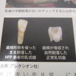 歯科医療は命を救う仕事:低ホスファターゼ症